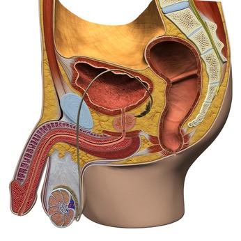 Die Induratio Penis Plastica ist eine gutartige Erkrankung des Penis