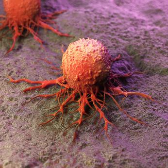 Bösartige Tumore und Therapiemöglichkeiten